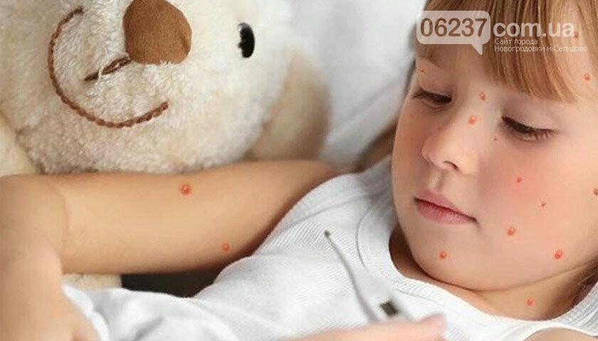 Вспышка кори Украине: ежедневно фиксируют до 400 больных, фото-1
